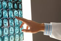 Stock photo of a doctor examining a brain x-ray.